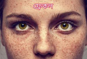 ফ্রেকল (Freckles)