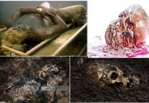 মৃতদেহের পচন প্রক্রিয়া,মৃতদেহ/লাশ পচার কারণ